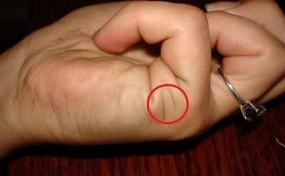 Линии Брака на руке