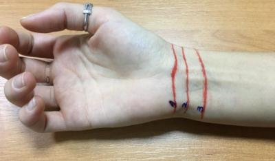 Три линии на запястье
