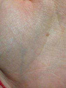 Точка на левой руке