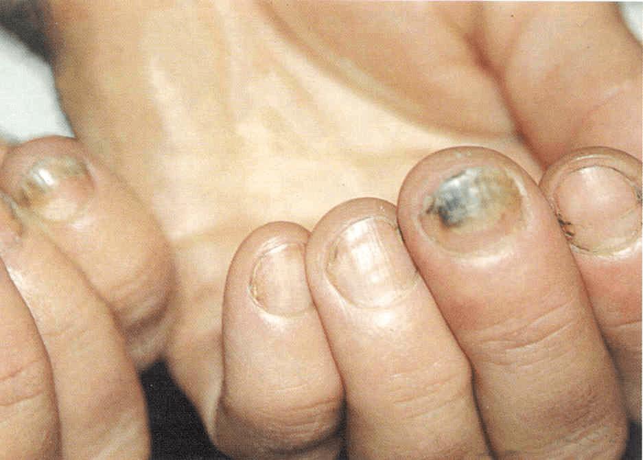 Заговор на ногтевой грибок