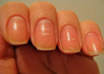 Белые пяна на ногтях
