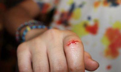 Кисть руки с порезанным пальцем