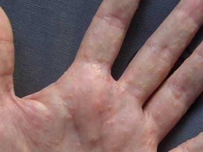 Лечение кожных болезней с помощью молитв